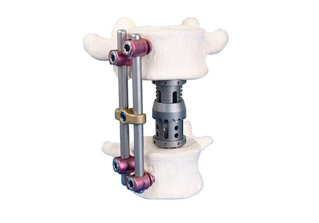 Система переднебоковой грудо-поясничной фиксации «ЛОТОС»